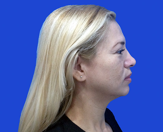 Before-Genioplastia