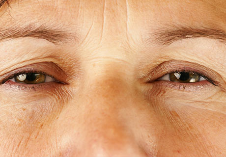 Blepharoplasty surgery plastic aesthetic cancun